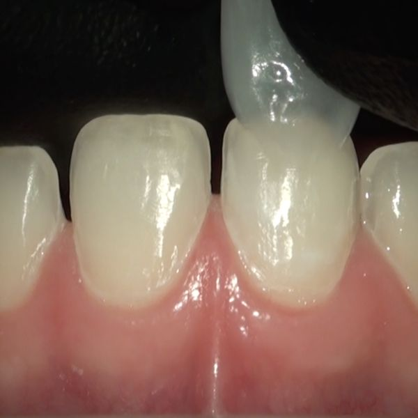 Imagem principal do produto Dominando o Sorriso em Cerâmica