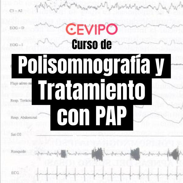 Imagem principal do produto Polisomnografía y Tratamiento con PAP