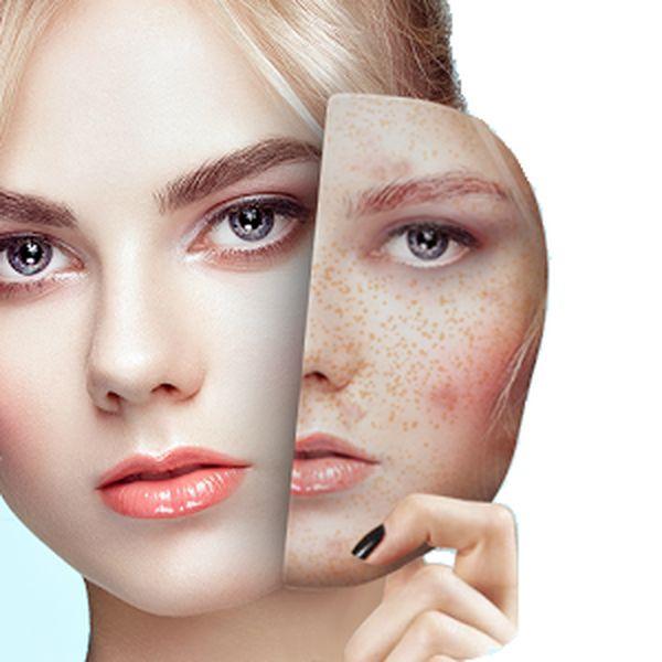 Imagem principal do produto BB Glow Dermaplaning e Peeling