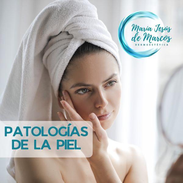 Imagem principal do produto Curso Patologías de la Piel