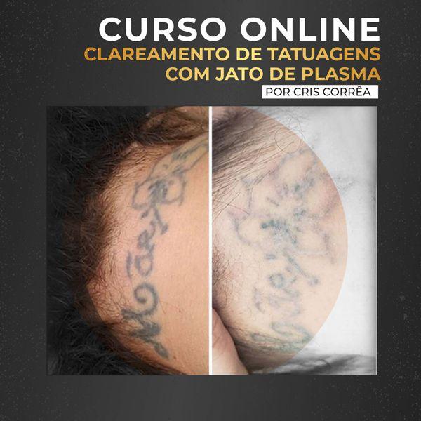Imagem principal do produto Curso de Clareamento de tatuagem com Jato de Plasma