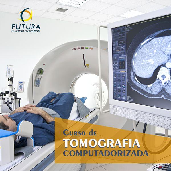 Imagem principal do produto Curso Online de Tomografia Computadorizada