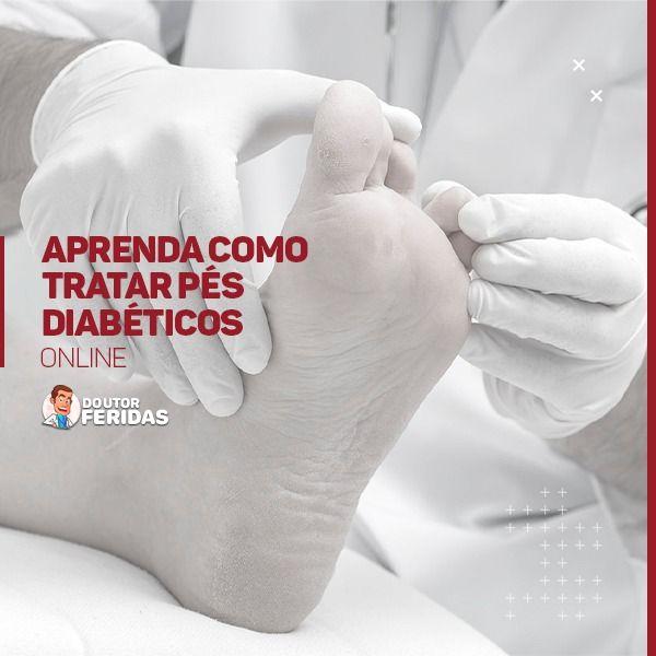 Imagem principal do produto Aprenda como tratar Pés Diabéticos