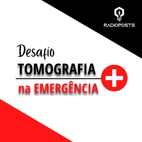 Imagem principal do produto Desafio Tomografia na Emergência