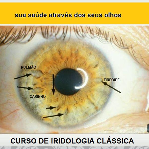 Imagem principal do produto CURSO DE IRIDOLOGIA CLÁSSICA E  HOLISTICA