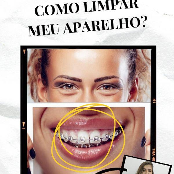 Imagem principal do produto COMO LIMPAR MEU APARELHO ORTODÔNTICO