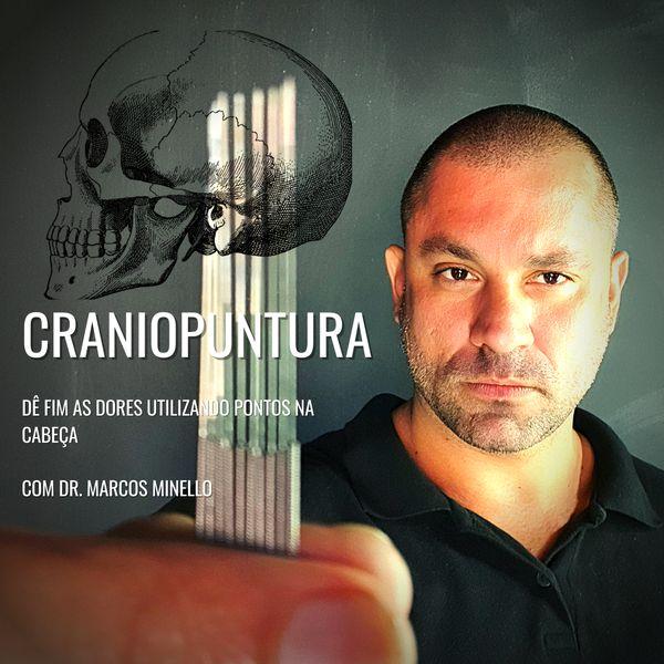 Imagem principal do produto Craniopuntura
