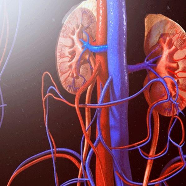 Imagem principal do produto O que é Acidose Tubular